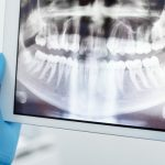 zanesljiva-pricvrstitev-zobne-proteze